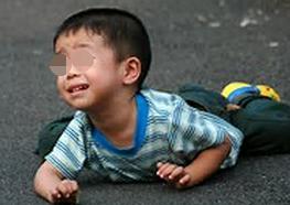 幼儿睡眠期癫痫发作的症状