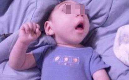 婴儿癫痫痉挛症状