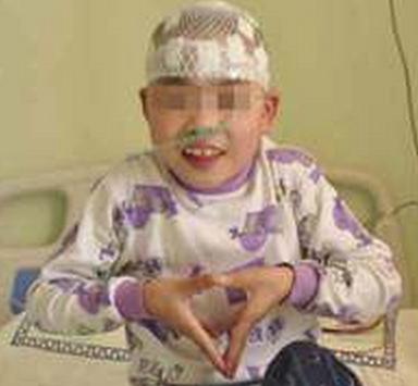 幼儿癫痫病的症状